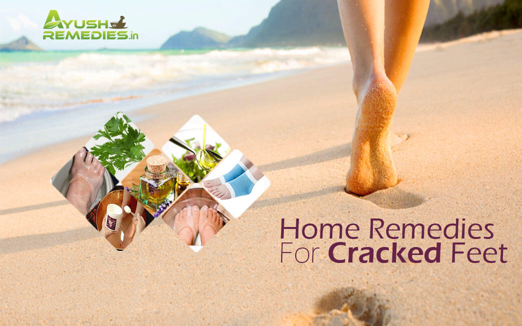 Home Remedies For Cracked Feet