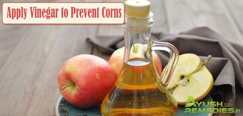 Apply Vinegar to Prevent Corns