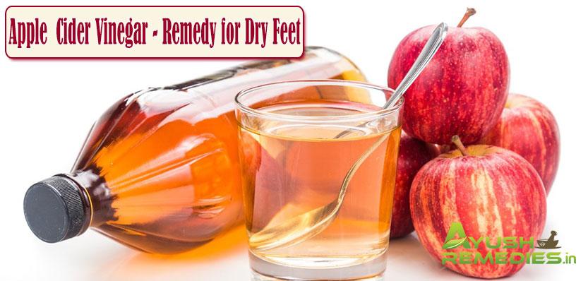 Apple Cider Vinegar Remedy for Dry Feet