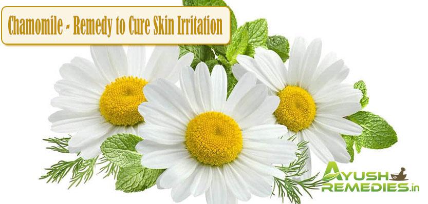 Chamomile Remedy to Cure Skin Irritation