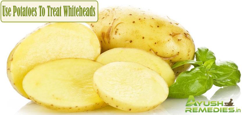 Use Potatoes To Treat Whiteheads